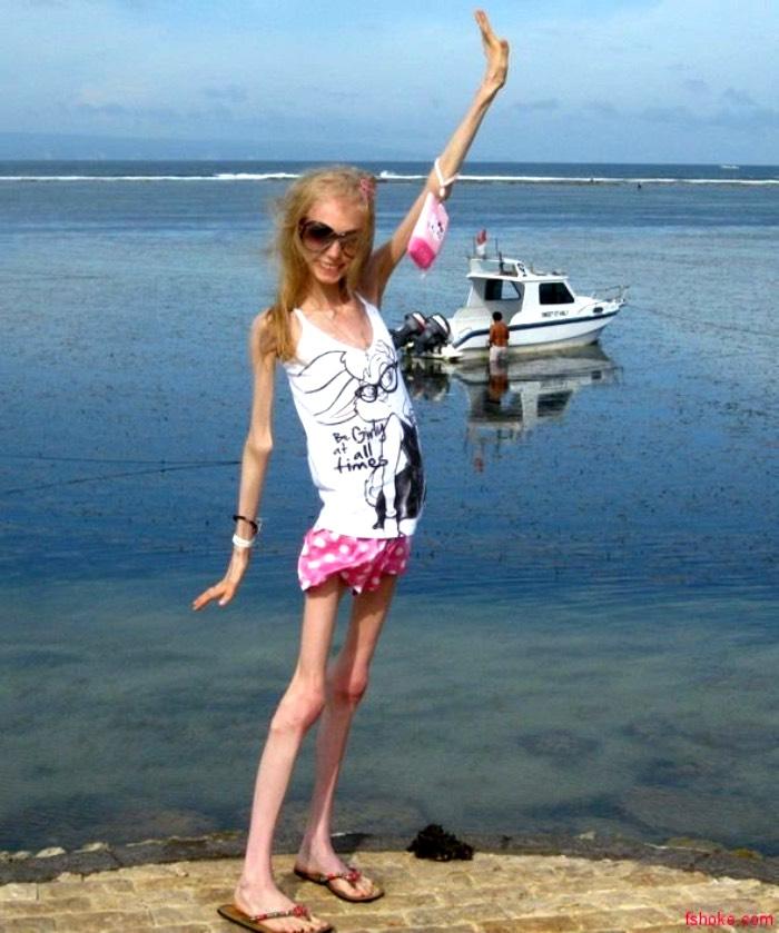 10 лет назад в «Пусть говорят» пришла Ксения с просьбой о помощи. Как девушка выглядит сегодня